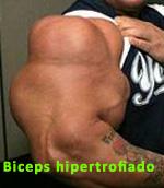 biceps hipertrofiado